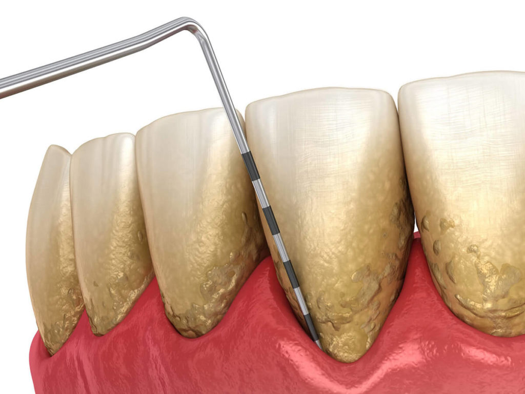 illustration of teeth with gum disease